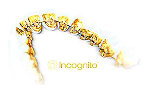 Брекеты Инкогнито (Incognito)