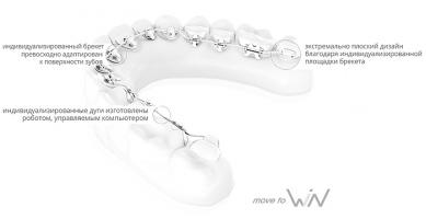 win_braces_advantages