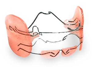 Регулятор функции Френкеля. В зависимости от назначенного лечения, аппарат может стимулировать или удерживать рост челюстей.