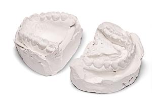 Диагностические модели челюстей
