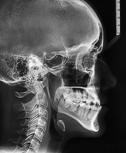 Телерентгенограмма (ТРГ) в боковой проекции