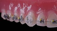 Наклейте ортодонтический воск на место брекет-системы, которое создает дискомфорт