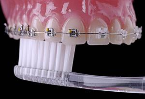Чистка зубов ортодонтичекой щеткой