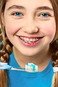 Гигиена пролости рта во время ношения брекетов