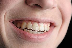 Пластиковая каппа в качестве ретенционного аппарата практически не заметна на зубах
