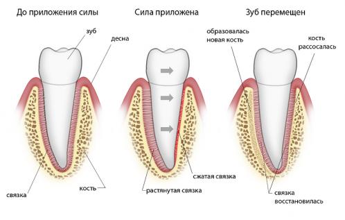 Почему брекеты двигают зубы?