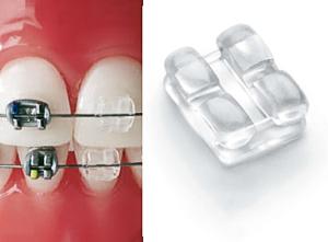 Сапфировые брекеты Ormco Inspire Ice и сравнение их с металлическими
